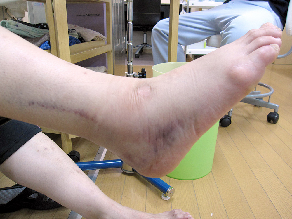 足首の捻挫